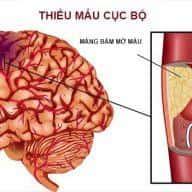 Bệnh Thiếu Máu Não Là Gì Và Cách Phòng Tránh❓🤔 7