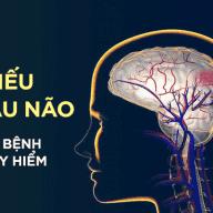 8 🏵️ Triệu Chứng Thiếu Máu Não | Những Điều Bạn Cần Biết 8