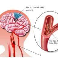 nhồi máu não là gì
