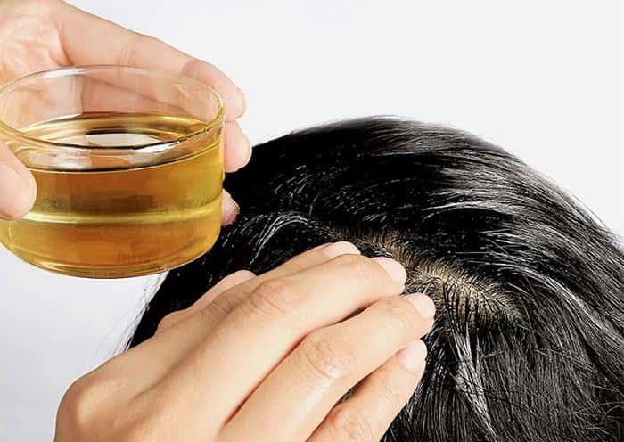 chữa nấm da đầu bằng tinh dầu bạc hà